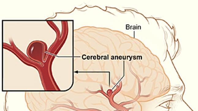 Causas, síntomas y tratamiento de la hemorragia subaracnoidea