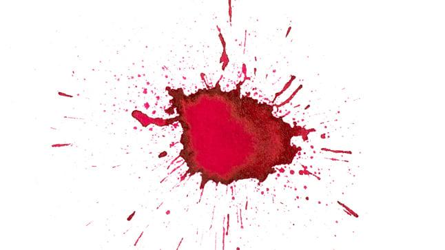 Causas de la hemorragia vaginal en el primer trimestre de la gestación
