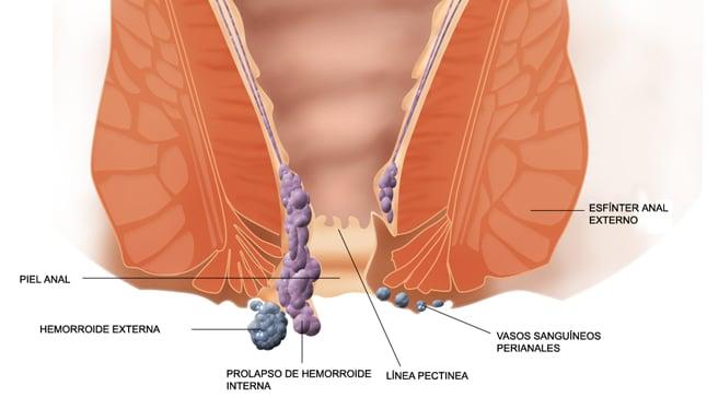 ¿Qué complicaciones tienen las hemorroides?