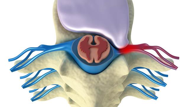¿Puede prevenirse la hernia discal?