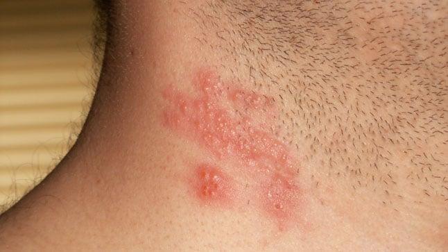 ¿Cómo se contagia el Herpes Zoster?