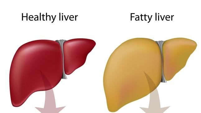 ¿Cómo se diagnostica el hígado graso?