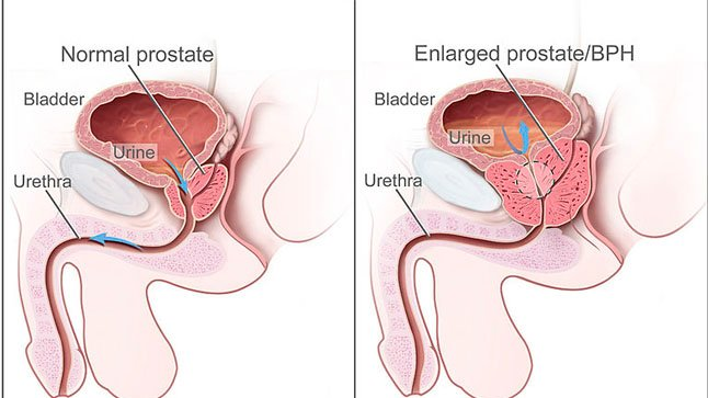 ¿Cómo se diagnostica la hiperplasia benigna de próstata?