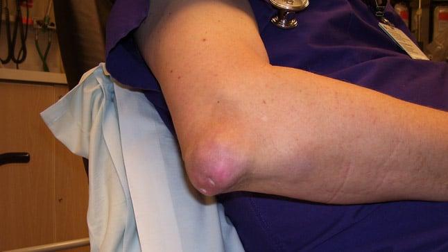¿Cómo se diagnostica la hiperuricemia?