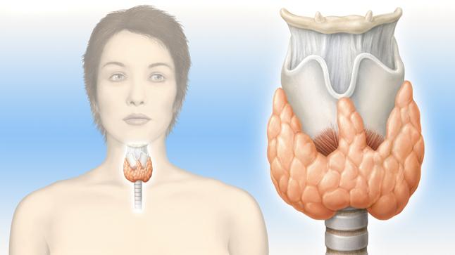 ¿Cuáles son las consecuencias del hipotiroidismo y sus complicaciones?