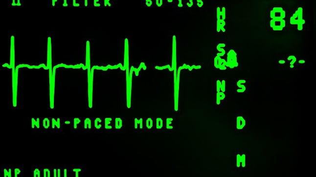 ¿Cuándo se realiza un holter cardiaco?