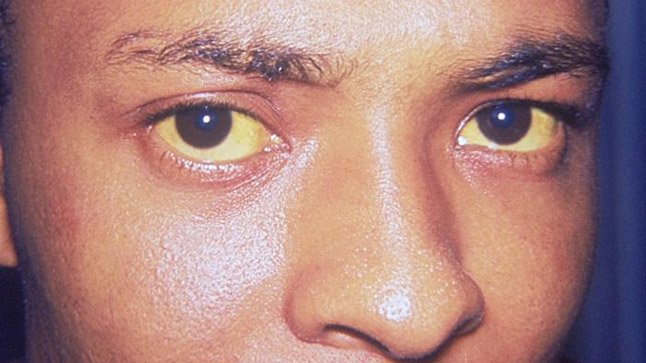 ¿Cómo se diagnostica la ictericia?