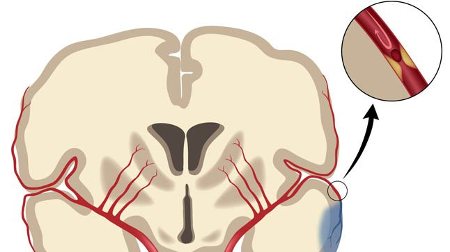 ¿Cómo se diagnostica el ictus?