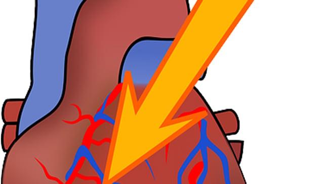 Causas, síntomas y tratamiento del infarto de miocardio
