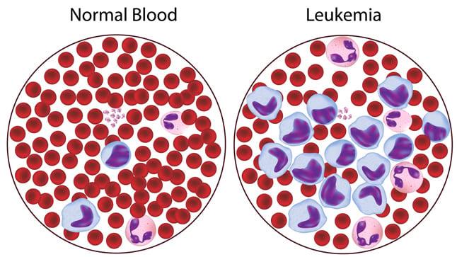 Causas, síntomas y tratamiento de las leucemias