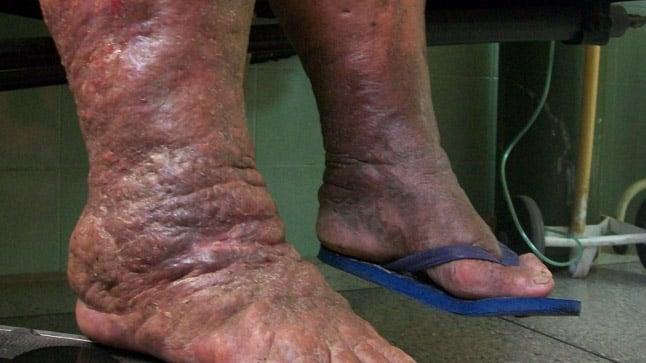 ¿Cómo se diagnostica el linfedema?