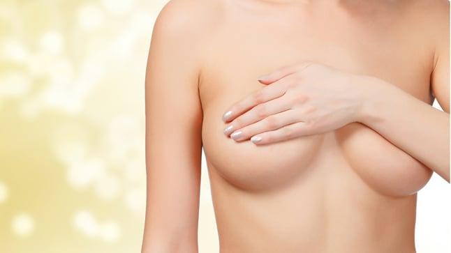 Mamoplastia de reduccuión, ¿qué es?