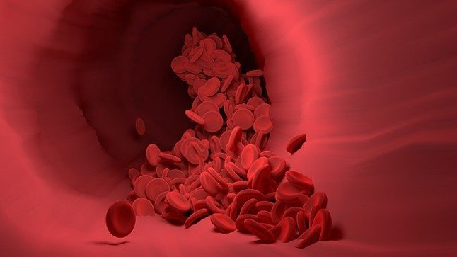 ¿Cómo se diagnostica la mielodisplasia?