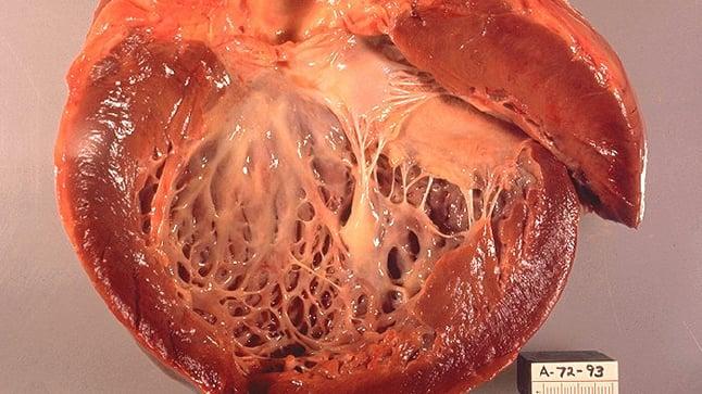 ¿Cómo se diagnostica la miocardiopatía hipertrófica?