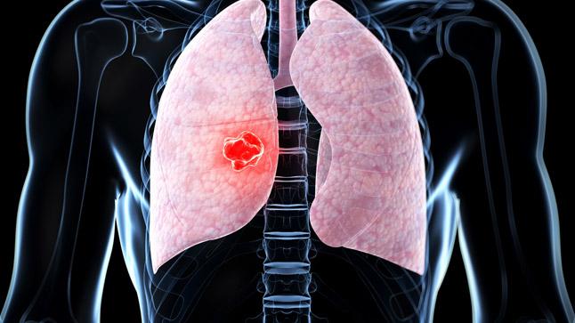 Causas y tratamiento de los nódulos pulmonares solitarios