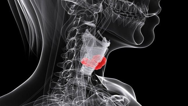 Causas, síntomas y tratamiento de los nódulos tiroideos