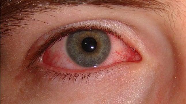 Protocolo de actuación ante un ojo rojo