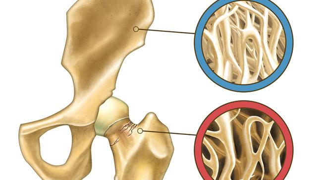 Causas, síntomas y tratamiento de la osteoporosis