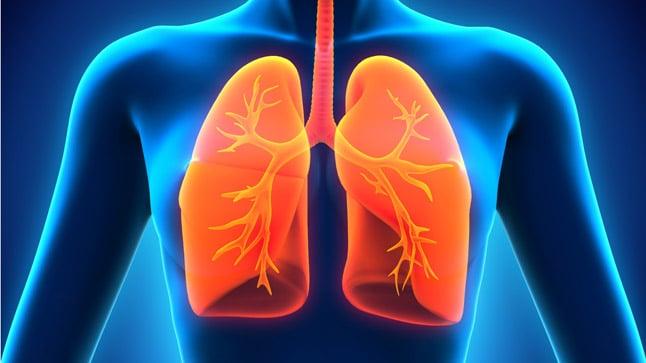¿Cómo se diagnostica la pleuritis?