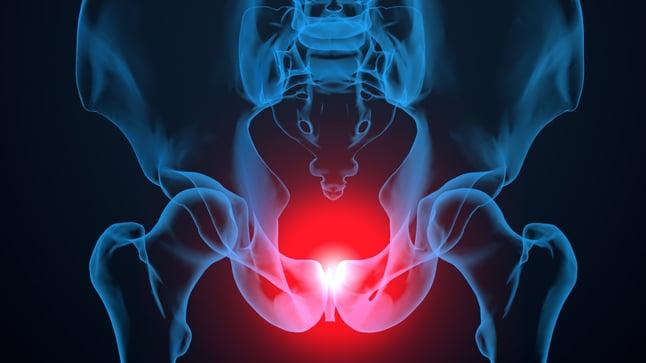 ¿Cómo se diagnostica el prolapso rectal?
