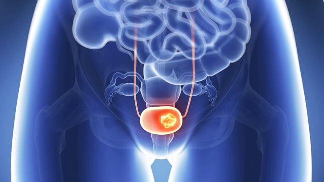 Prolapso uterino: causas, síntomas y tratamientos