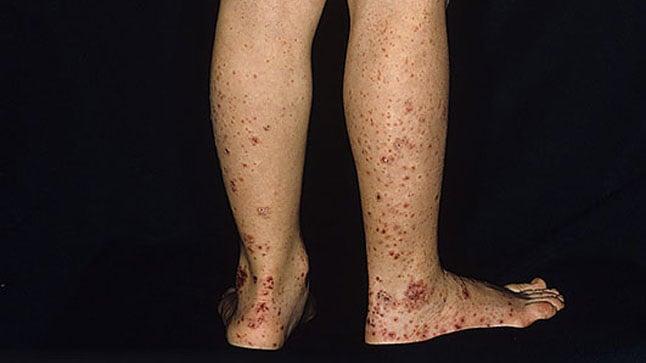 ¿Cómo se diagnostica la púrpura de Schonlein-Henoch?