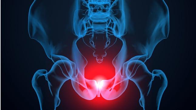 ¿Cómo se diagnostica el rectocele?