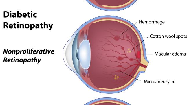 Tipos de retinopatía diabética