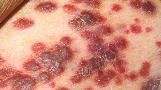 Causas, síntomas y tratamiento del sarcoma de Kaposi