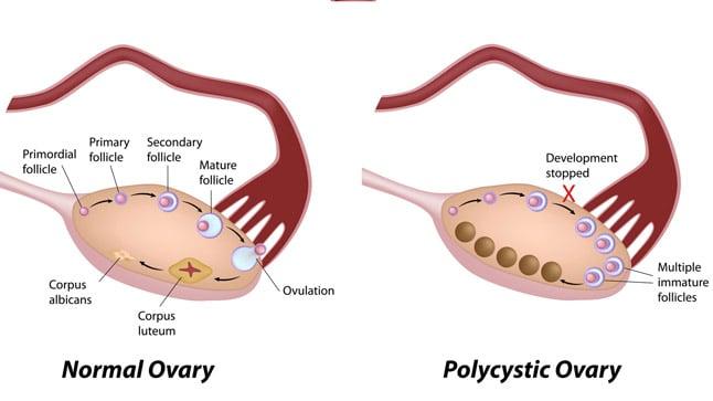 ¿Cómo se diagnostica el síndrome del ovario poliquístico?