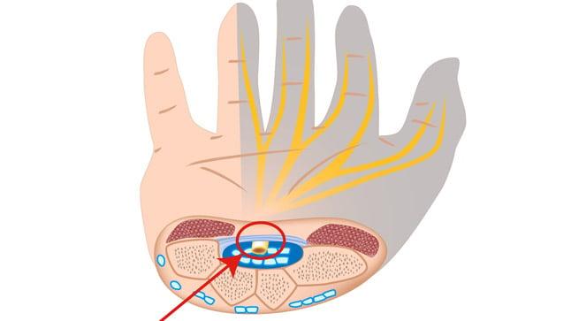 ¿Cómo se diagnóstica el síndrome del túnel carpiano?