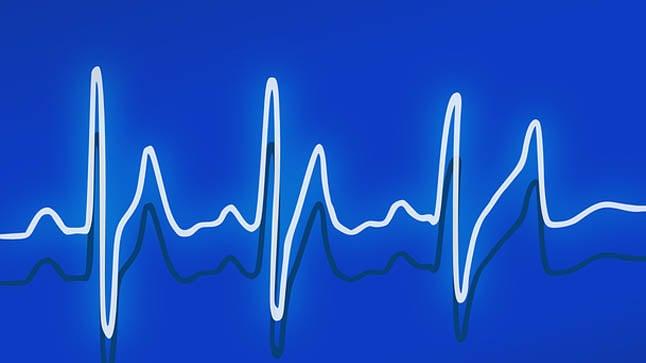 ¿Cómo se diagnostica el taponamiento cardiaco?