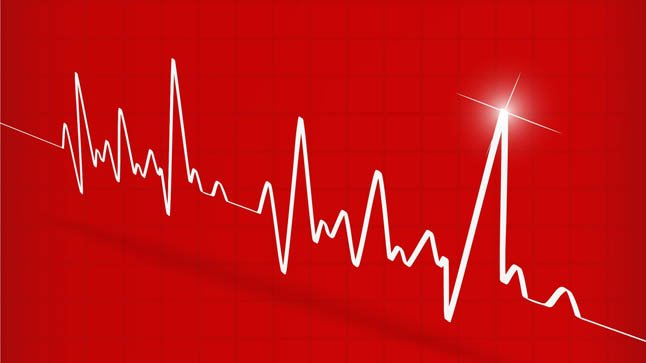 ¿Cómo se diagnostica la taquicardia supraventricular?