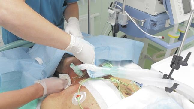 ¿En qué consiste una traqueostomía?