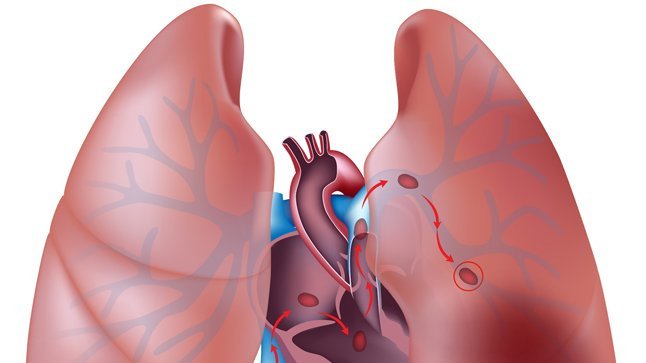 ¿Qué síntomas produce el tromboembolismo pulmonar?