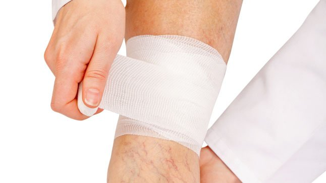 ¿Cómo se diagnostica una tromboflebitis?