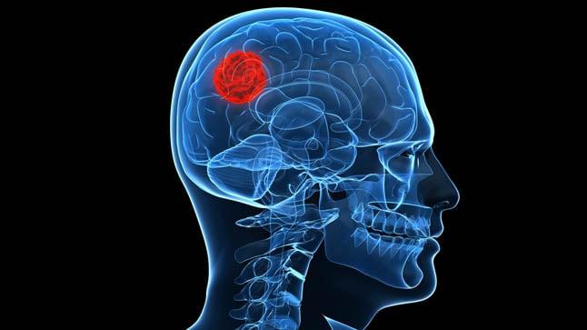 Causas, tipos y síntomas de los tumores cerebrales en adultos