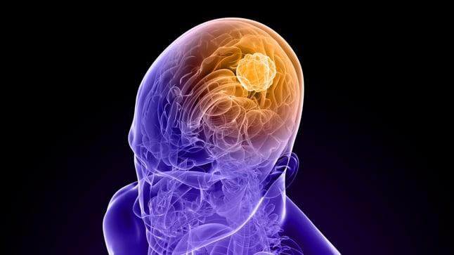 ¿Cómo se diagnostican los tumores cerebrales en niños?
