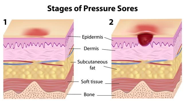 ¿Cómo podemos prevenir las ulceras por presión?