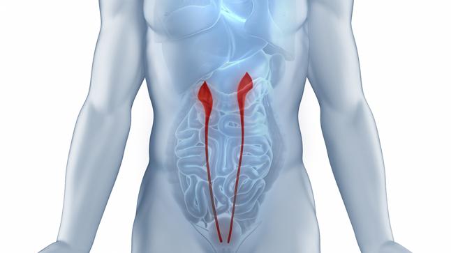 Procedimiento de la ureteroscopia