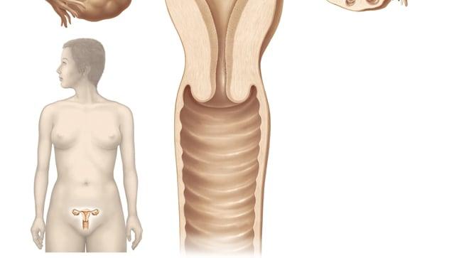 ¿Cómo se diagnostica una vulvovaginitis?