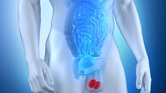 ¿Puede prevenirse el varicocele?